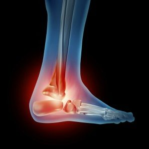 foot-ankle-pain-300x297